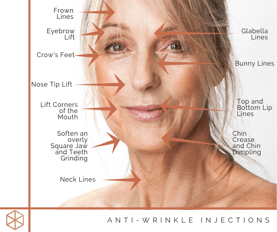 Anti wrinkle injections with arrows