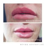 Lip dissolving